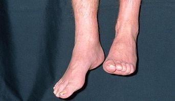 foot drop